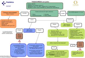 taquicardia