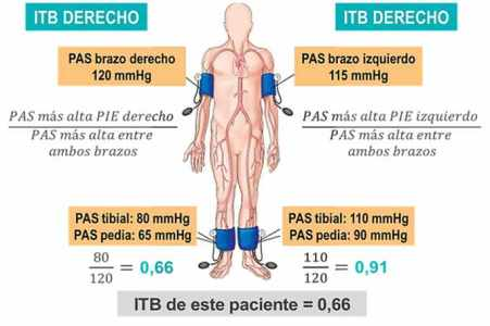 itb-4