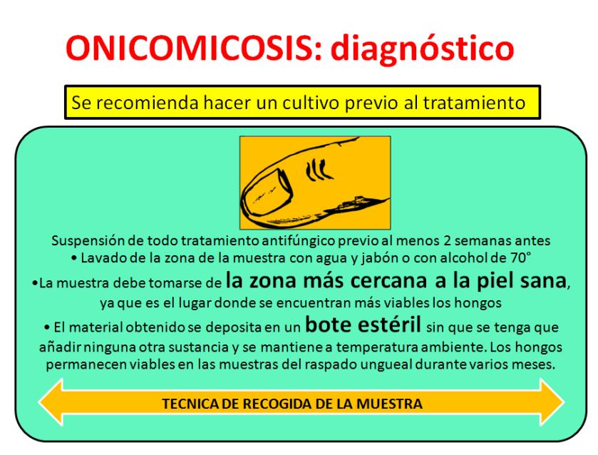 onicomicosis-1