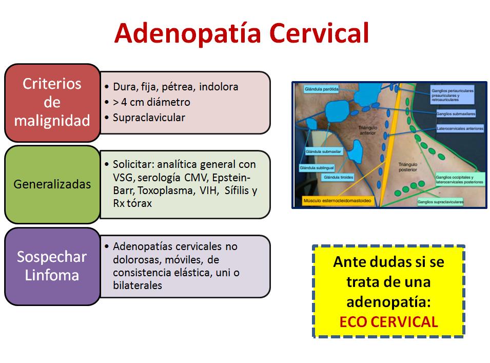 Adenopatía cervical