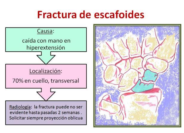 fractura escafoides