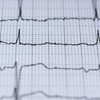 Chuleta: bloqueo del nodo auriculo-ventricular