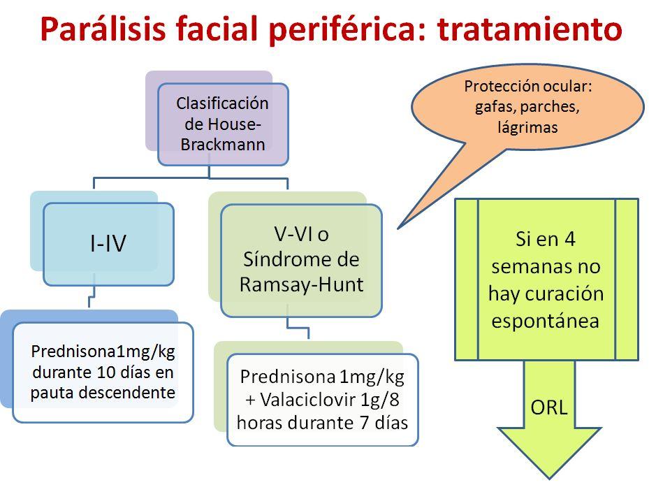 paralisis facial-2