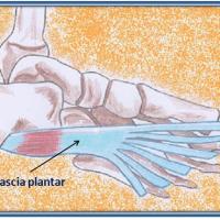 Fascitis plantar: diagnostico y tratamiento
